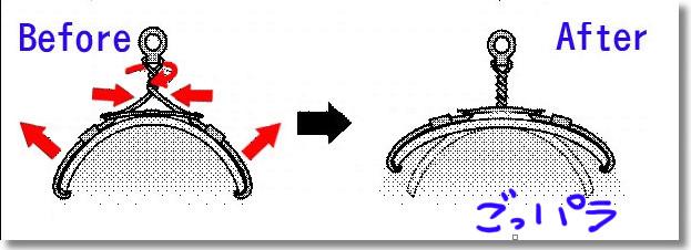 巻き爪治療図